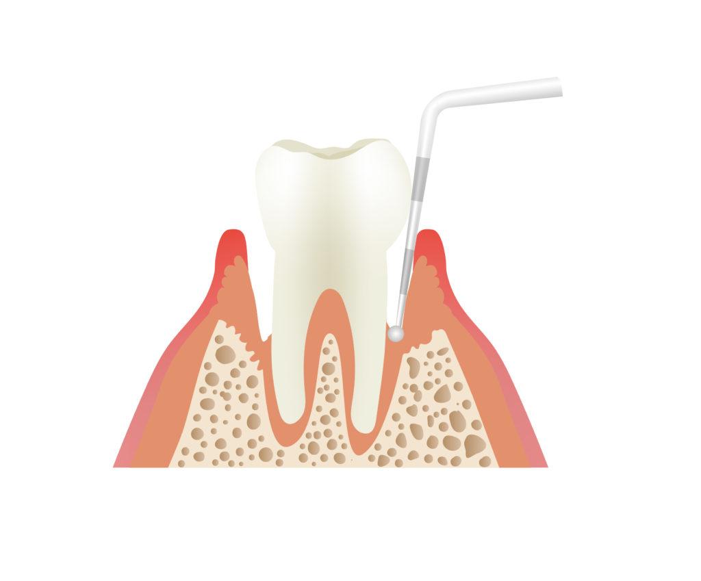 歯周ポケットのプローブ検査
