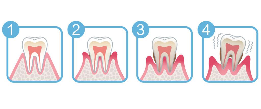 歯周病進行度