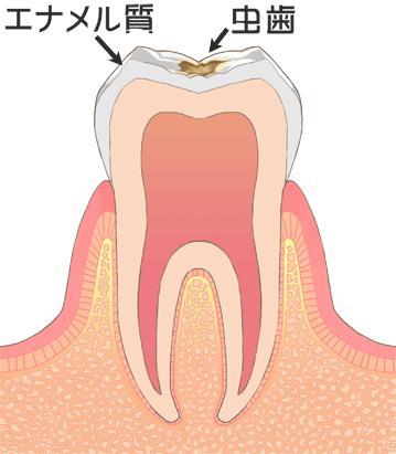 C1虫歯初期