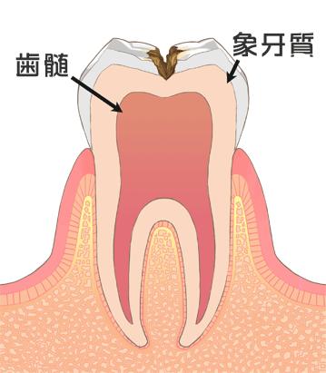C2虫歯中期