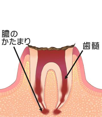 C4虫歯末期