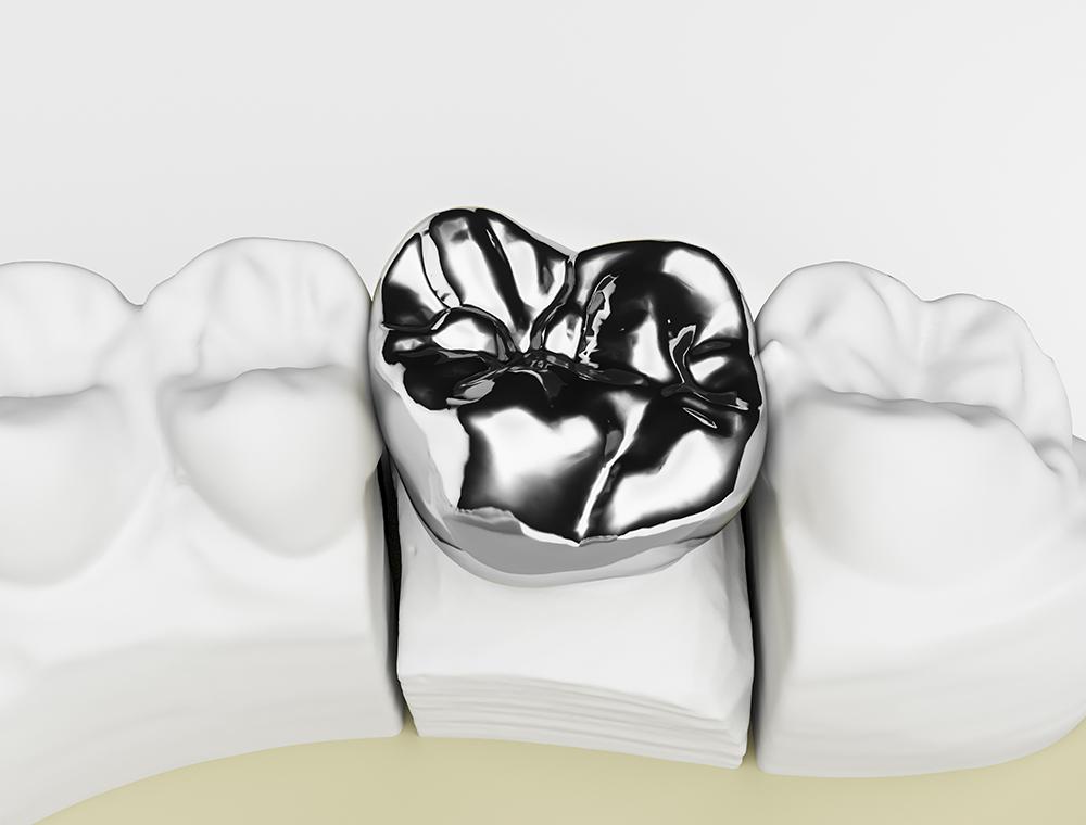 銀歯の被せ物