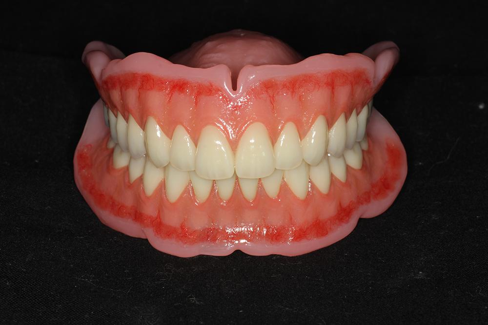 自費総入れ歯
