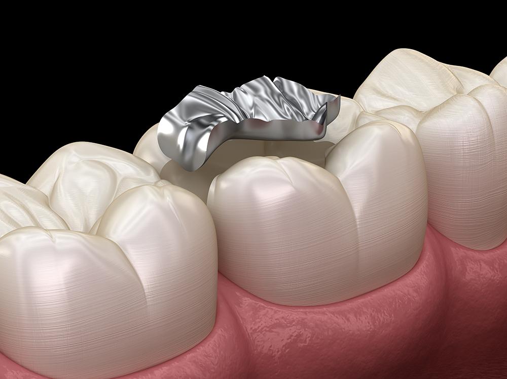 銀歯の詰め物