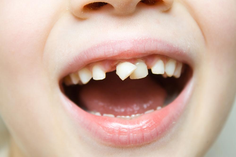 ぐらぐらした乳歯