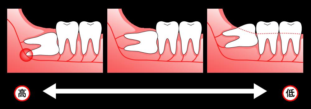 親知らず抜歯の際の難易度