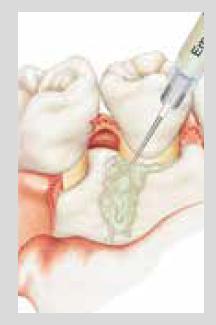 歯周病外科手術(エムドゲイン法)